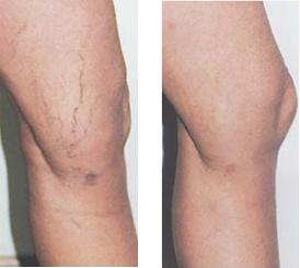 broken vein treatment